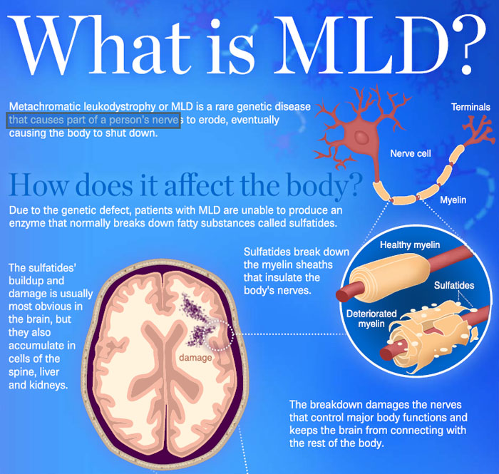 mld_infographic_01